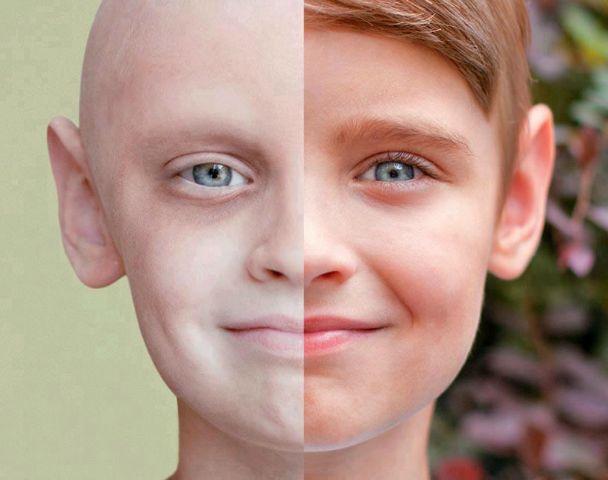 در مبارزه با سرطان به کمک همشهریان بیاییم